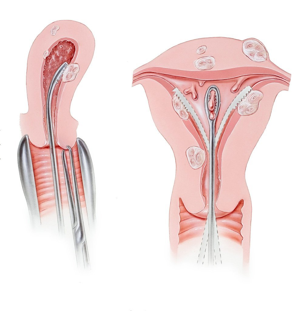 kürtaj işlemi