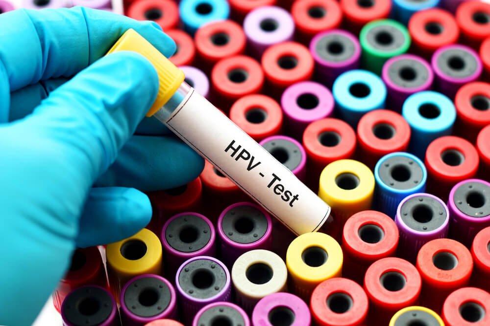 mely tabletták jók a paraziták ellen
