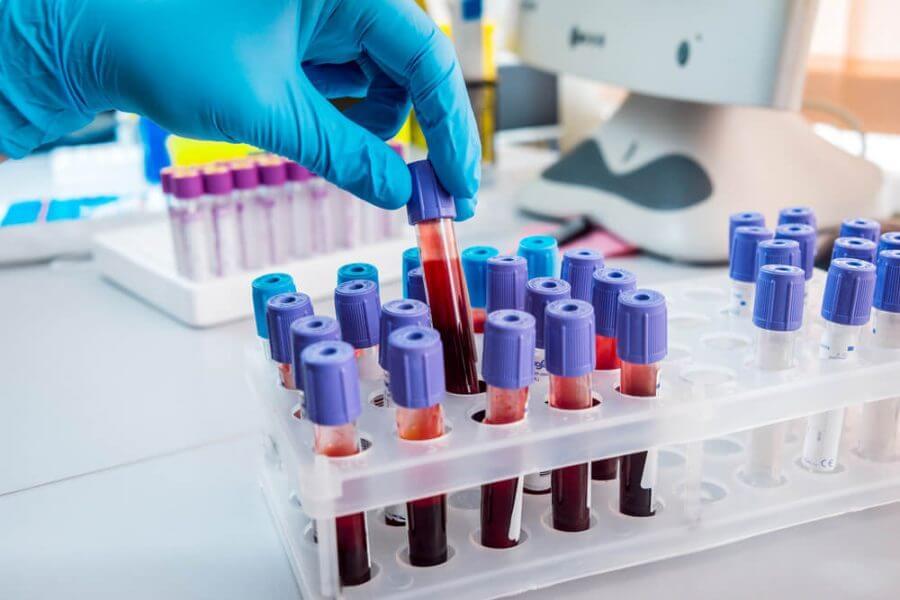 кровь на сифилис