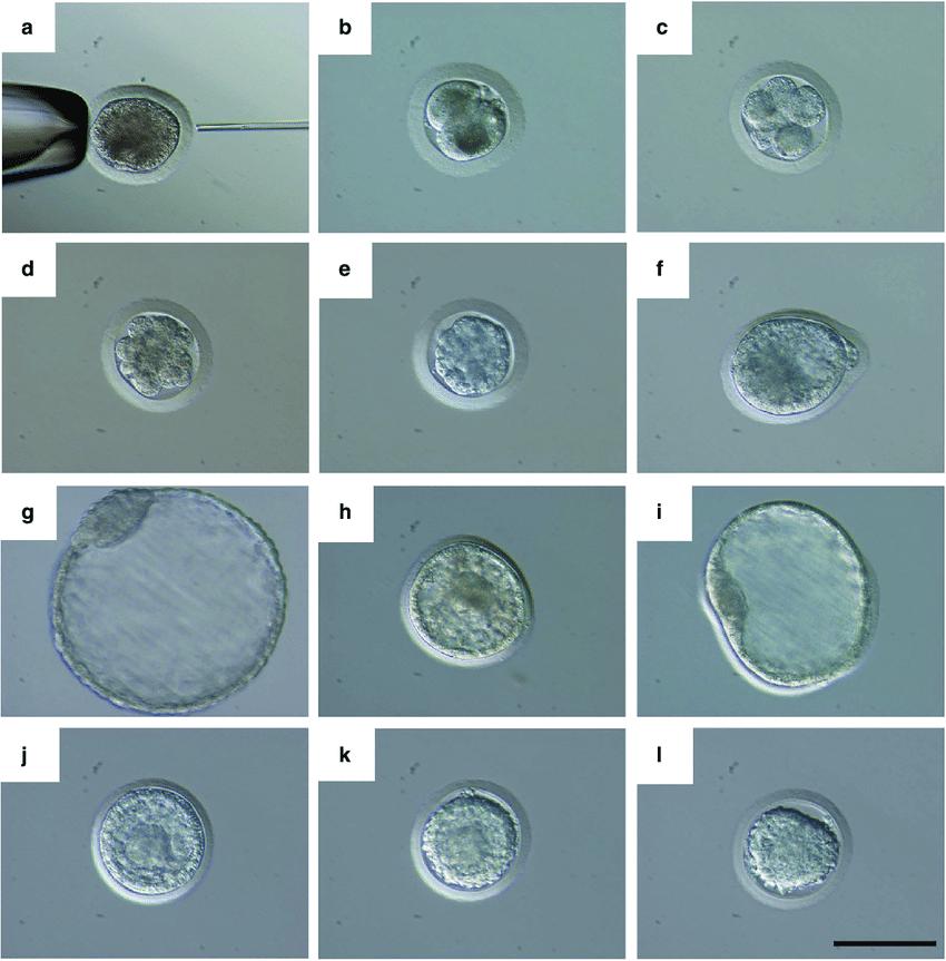 ICSI sonrası embriyo gelişim süreci