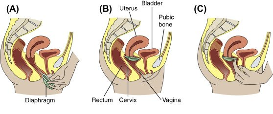 kadın prezervatifi kullanımı
