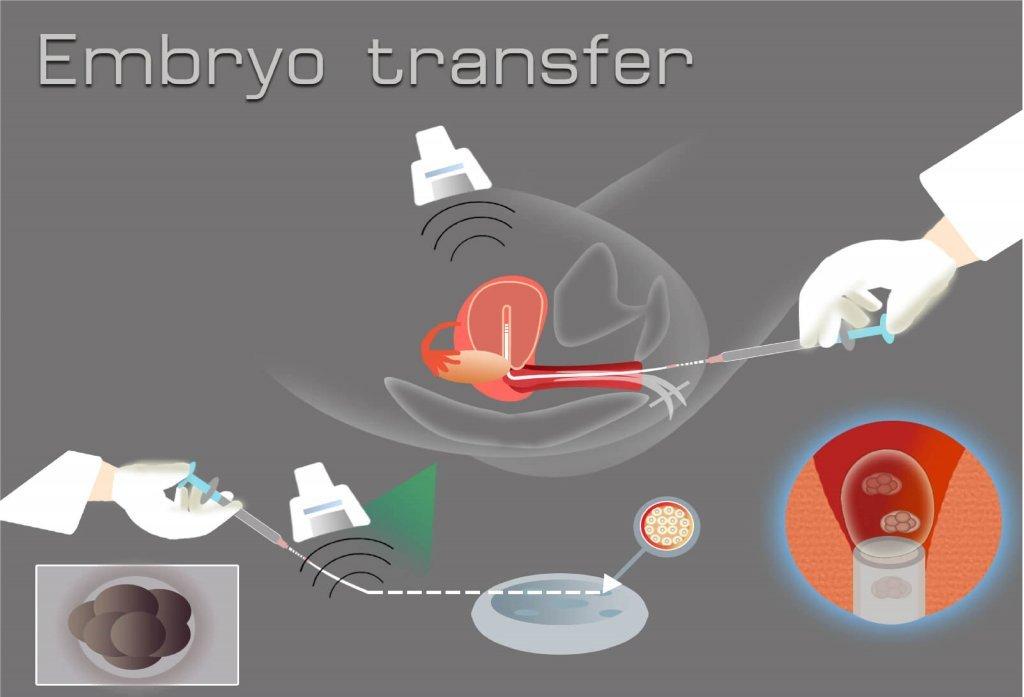 Embriyo transferi işlemi