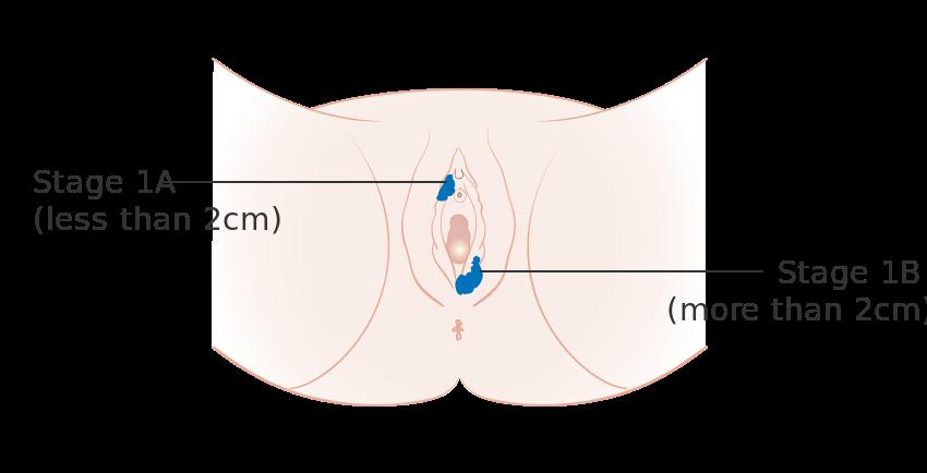 Vulva kanseri evre 1 a ve 1 b