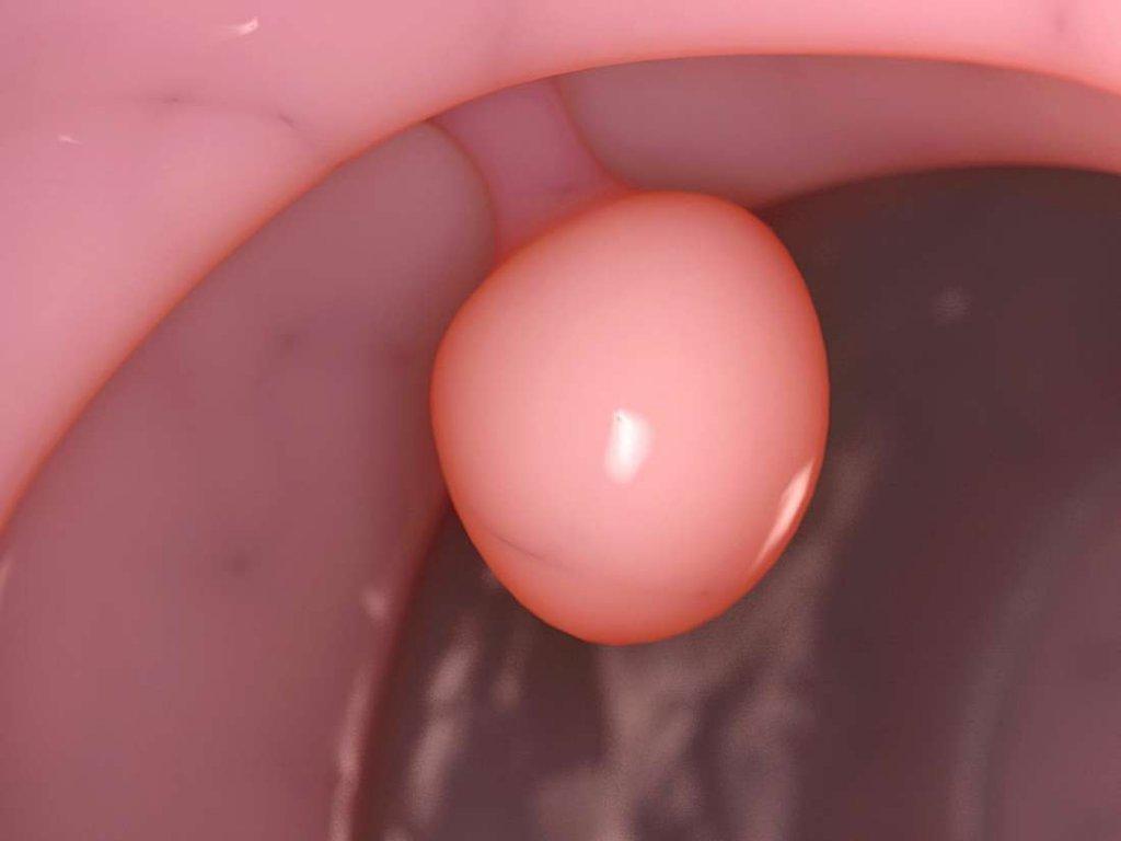 endometrial polip