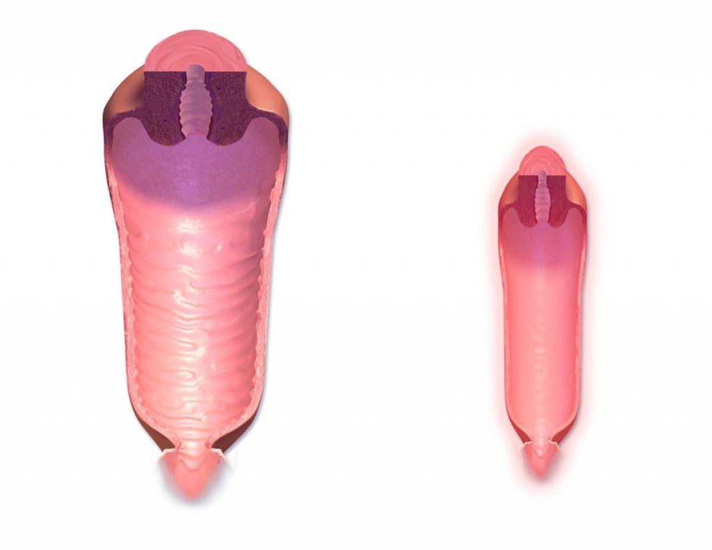 Normal vajina kanalı- menopoz